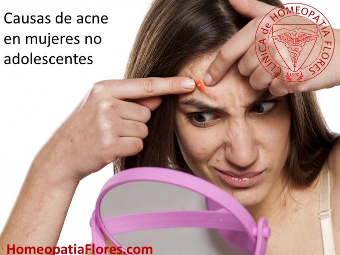 Causas de acne cuando la adolescencia ha quedado atras