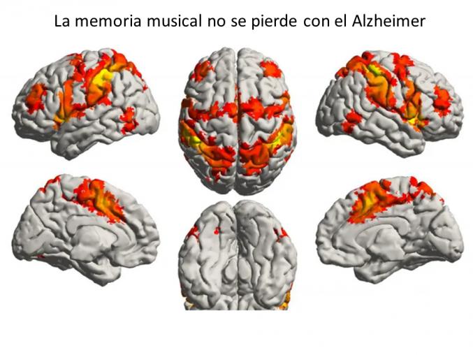 La importancia de la música en la salud mental