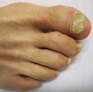 Que tan efectivo es el tratamiento con rayo láser para los hongos de las uñas de los pies? Hay evidencia medica que indique que estos tratamientos con láser  funcionan?